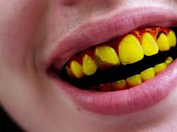 Teeth So Yellow